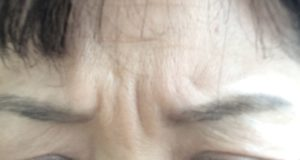 眉間のシワ取り対策方法